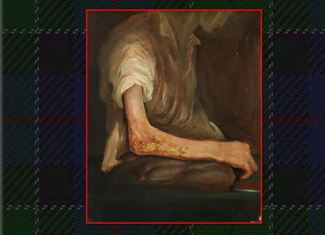 Healing arm wound Corunna