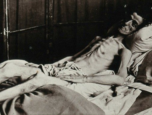 A Man dying of diabetes before insulin